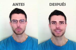 Mejorar la vista