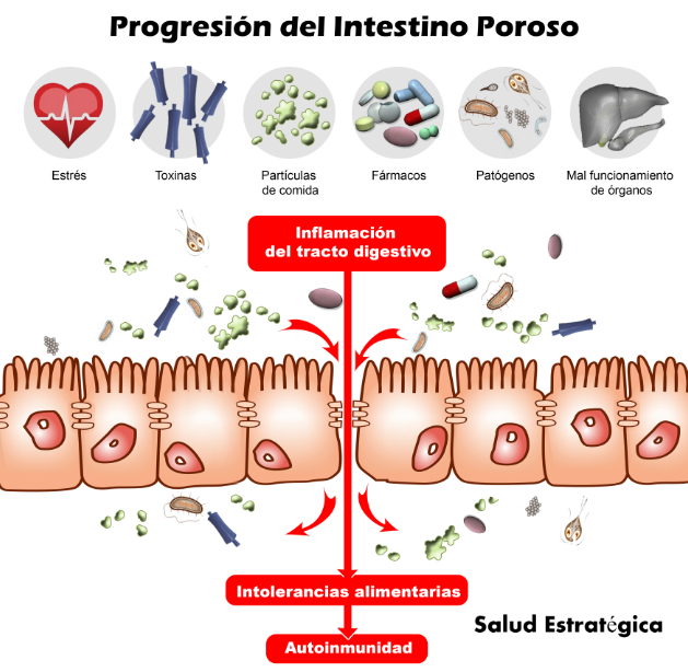 Progresión Intestino Poroso